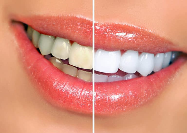 What Can Cause Tooth Discoloration?
