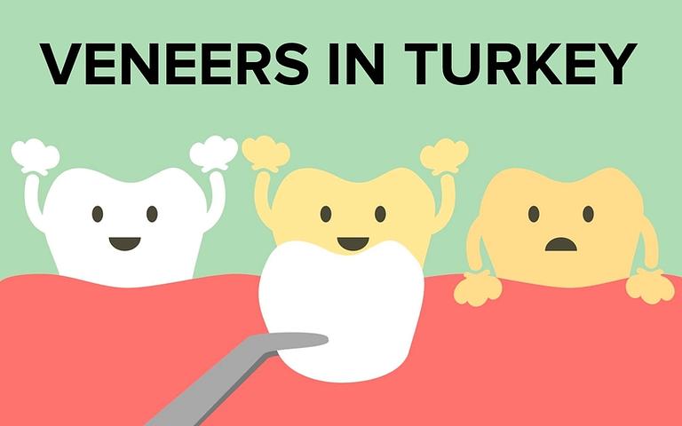 Veneers in Turkey
