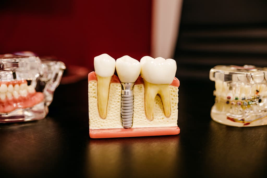 It is important to protect our teeth from smoking after the dental operation.