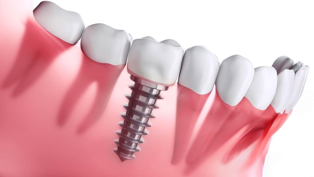 dental implant Turkey